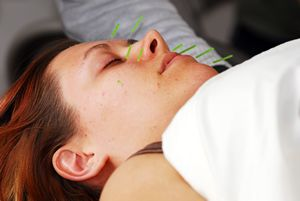 Acupuncture Facial Rejuvenation